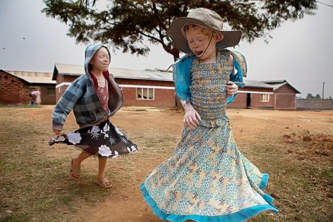 albinos-en-tanzania-1 (2)