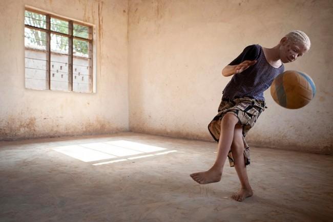 albinos-en-tanzania-1
